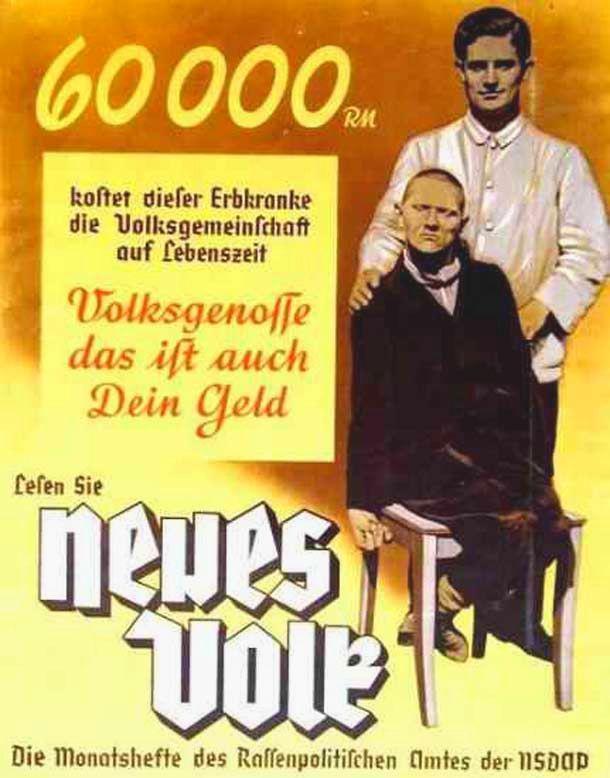 «Этот больной за время жизни обходится народу в 60 000 рейхсмарок. Гражданин – это и твои деньги!» Агитационный плакат, Германия, 1939 год.