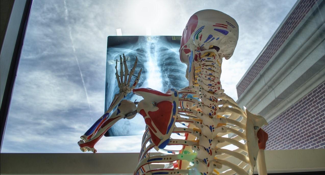медицина, рентген, скелет